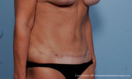 Philadelphia Abdominoplasty 9376 -  After Image 2