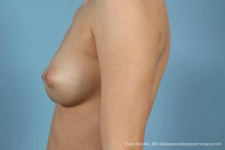 Philadelphia Breast Augmentation 8766 - Before and After Image 5
