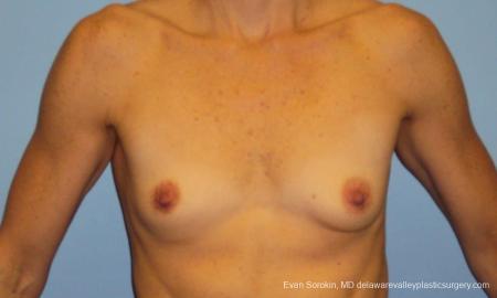 Philadelphia Breast Augmentation 10248 - Before Image 1