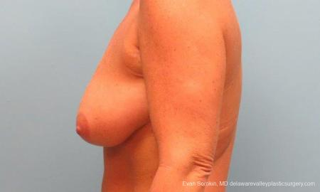 Philadelphia Breast Lift and Augmentation 9398 - Before and After Image 5