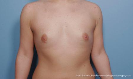 Philadelphia Breast Augmentation 9378 - Before Image 1
