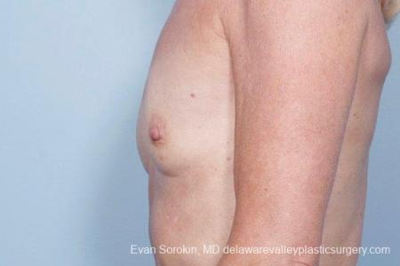 Philadelphia Breast Augmentation 8770 - Before and After Image 5