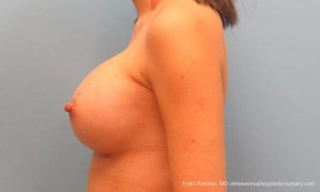 Philadelphia Breast Augmentation 9342 -  After Image 5