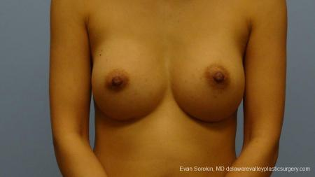 Philadelphia Breast Augmentation 9291 -  After Image 1