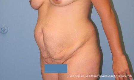 Philadelphia Abdominoplasty 10122 - Before Image 4