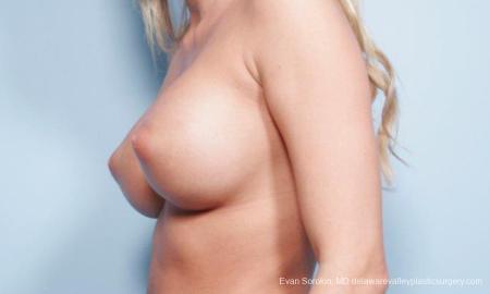 Philadelphia Breast Augmentation 9177 -  After Image 3