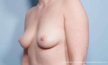 Philadelphia Breast Augmentation 8658 - Before Image 4