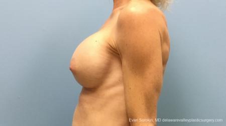 Philadelphia Breast Augmentation 13182 -  After Image 3