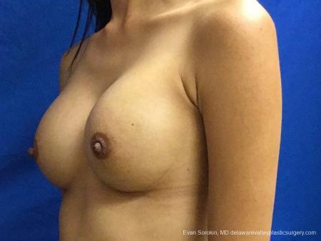 Philadelphia Breast Augmentation 13071 -  After Image 3