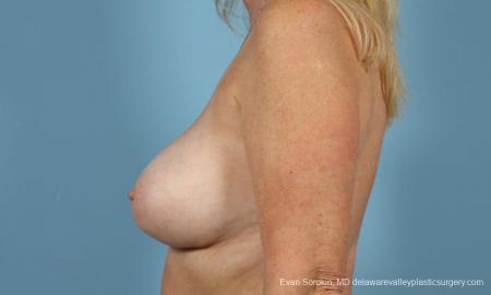 Philadelphia Breast Augmentation 9457 -  After Image 3