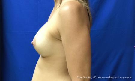 Philadelphia Breast Augmentation 12519 -  After Image 5