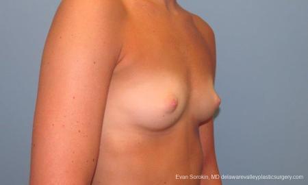Philadelphia Breast Augmentation 9621 - Before Image 2