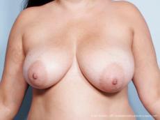 Philadelphia Breast Reduction 9441 - Before Image