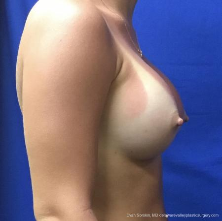 Breast Augmentation: Patient 165 - After Image 3
