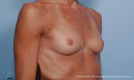 Philadelphia Breast Augmentation 8656 - Before Image 2