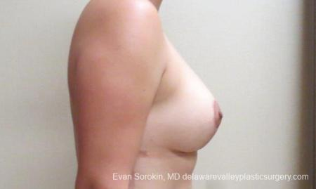Philadelphia Breast Lift and Augmentation 10123 -  After Image 3