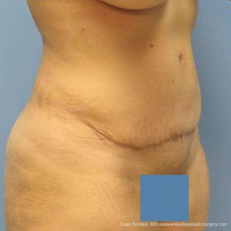 Philadelphia Abdominoplasty 9478 -  After Image 4