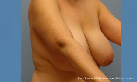 Philadelphia Breast Reduction 9430 - Before Image 3