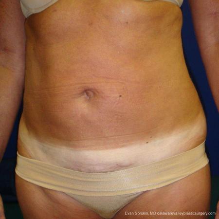 Philadelphia Liposuction 9488 -  After Image 2