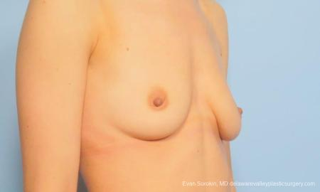 Philadelphia Breast Augmentation 9170 - Before Image 2