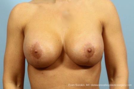 Philadelphia Breast Augmentation 8709 - After Image
