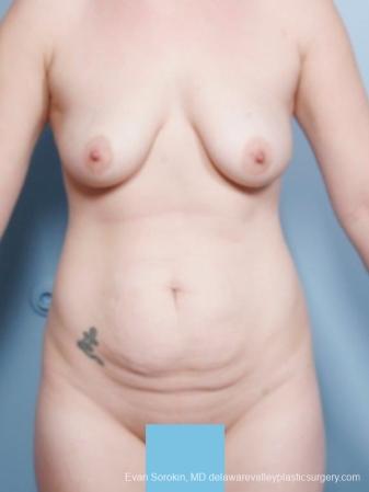 Philadelphia Mommy Makeover 8679 - Before Image 1