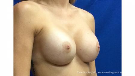 Philadelphia Breast Augmentation 13180 -  After Image 2