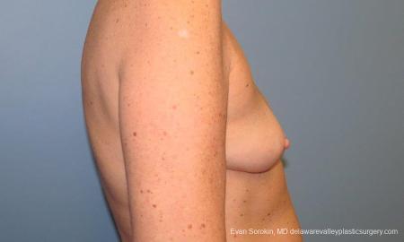 Philadelphia Breast Augmentation 9549 - Before Image 3