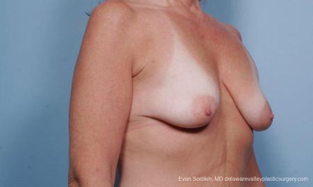 Philadelphia Breast Lift and Augmentation 9438 - Before Image 2