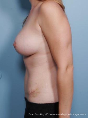 Philadelphia Mommy Makeover 8679 -  After Image 5
