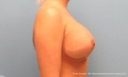 Philadelphia Breast Augmentation 9394 -  After Image 3