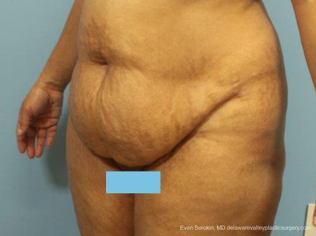 Philadelphia Abdominoplasty 9462 - Before Image 4