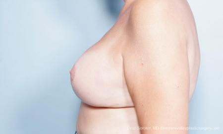 Philadelphia Breast Lift and Augmentation 9431 -  After Image 5