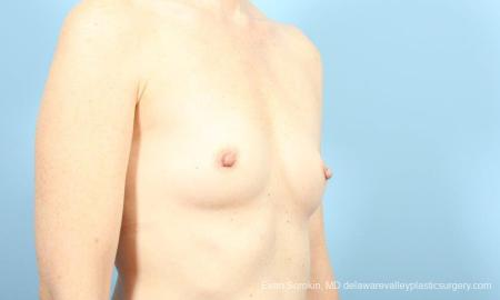 Philadelphia Breast Augmentation 8662 - Before Image 2