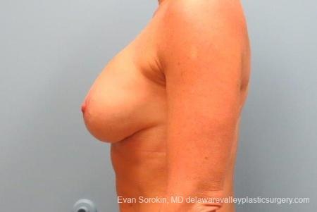 Philadelphia Breast Augmentation 8693 -  After Image 5