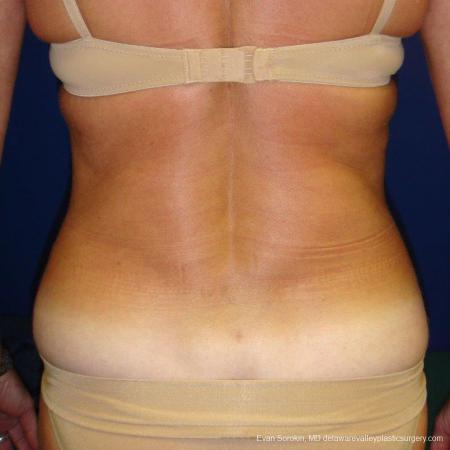 Philadelphia Liposuction 9488 -  After Image 5