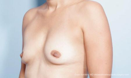 Philadelphia Breast Augmentation 9347 - Before Image 4