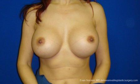Philadelphia Breast Augmentation 9294 -  After Image 1