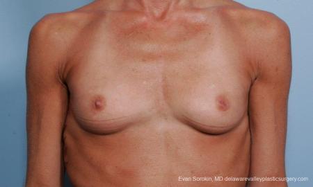 Philadelphia Breast Augmentation 8656 - Before Image 1