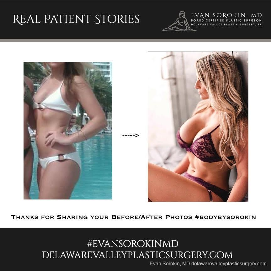 Real Patient Stories: Patient 11 - Before and After 1