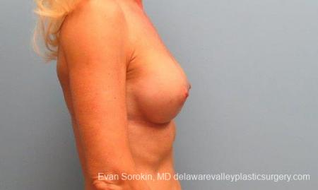 Philadelphia Breast Augmentation 9415 -  After Image 3