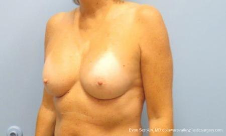 Philadelphia Breast Augmentation 9600 -  After Image 4