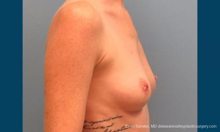 Philadelphia Breast Augmentation 9371 - Before Image 3