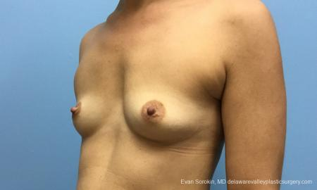 Philadelphia Breast Augmentation 12519 - Before Image 3