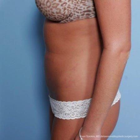 Philadelphia Liposuction 9483 -  After Image 3