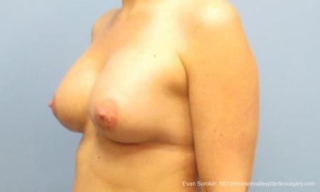 Philadelphia Breast Augmentation 9487 -  After Image 4