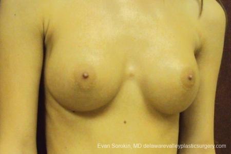 Philadelphia Breast Augmentation 8668 -  After Image 2