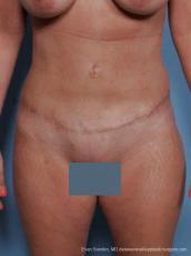 Philadelphia Abdominoplasty 9460 - After Image