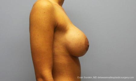 Philadelphia Breast Augmentation 9205 -  After Image 3