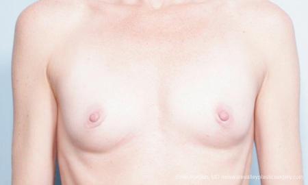 Philadelphia Breast Augmentation 9359 - Before Image 1